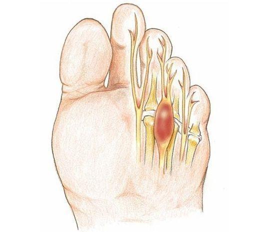 Cefalea tensiva: sintomi, rimedi e ... - Farmaco e Cura